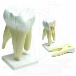 VKSI Human Tooth Model