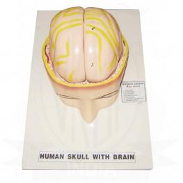 VKSI  Human Skull with Brain